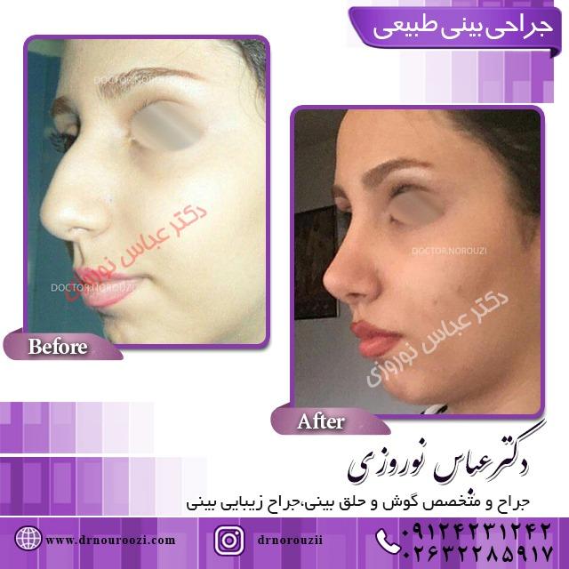 بعد از جراحی بینی چه کار کنیم بینی زیباتر شود؟
