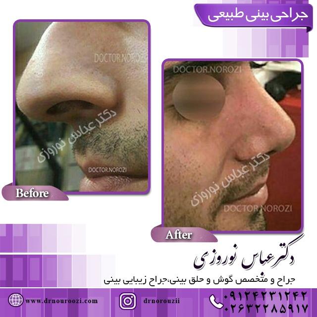 جراحی انحراف تیغه بینی