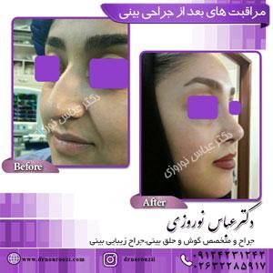 مراقبت-های-بعد-از-جراحی-بینی