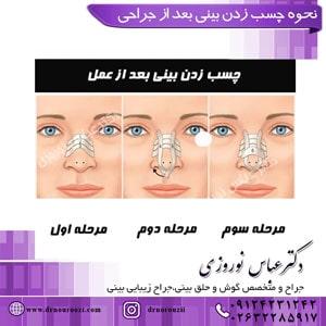 نحوه چسب زدن بینی بعد از جراحی