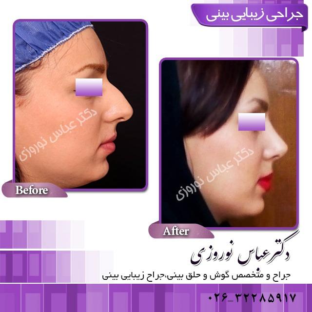 جراحی انحراف بینی در کرج