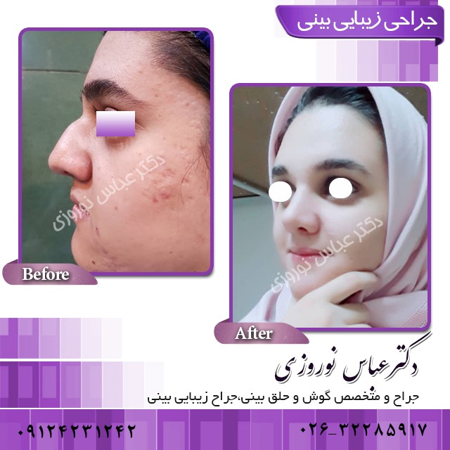 جراحی زیبایی بینی و آلرژی