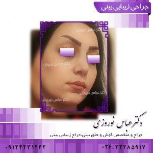 جراحی بینی دکتر عباس نوروزی
