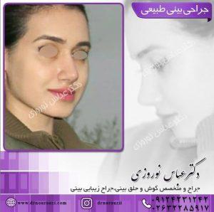 جراحی بینی دخترانه طبیعی