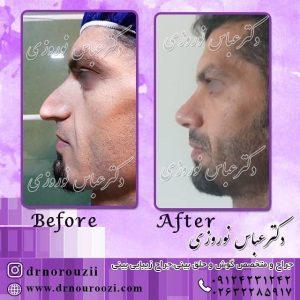 جراحی بینی با رفع افتادگی نوک بینی