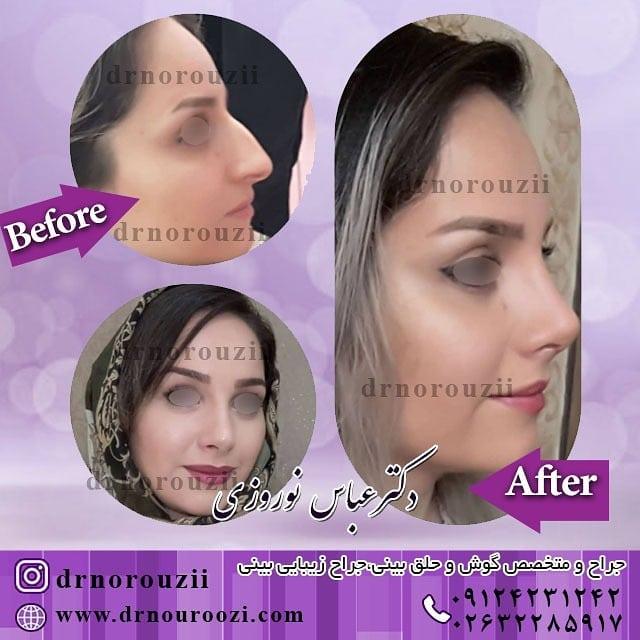 تصاویر قبل و بعد از جراحی بینی