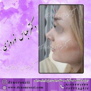 نمونه جراحی بینی زنانه