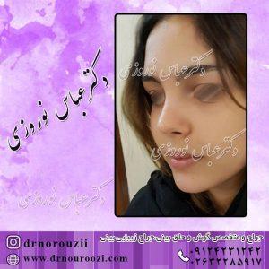 نمونه عمل بینی استخوانی زنانه