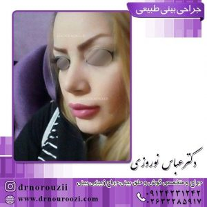 جراح زیبایی بینی دکتر نوروزی