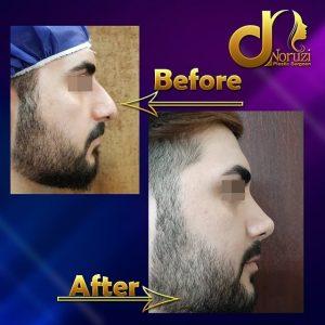عمل جراحی بینی مردانه