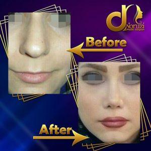 رفع افتادگی نوک بینی با جراحی