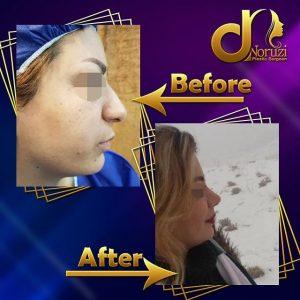 تصویر قبل و بعد بینی گوشتی جراحی شده