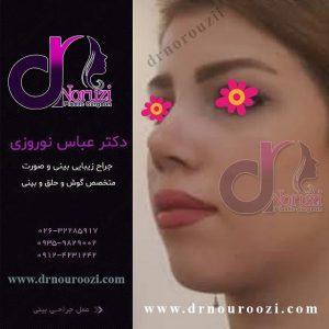 جراحی زیبایی بینی با رفع قوز