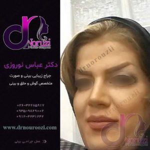 جراحی زیبایی بینی زنانه
