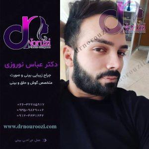 جراحی زیبایی بینی مردانه و طبیعی